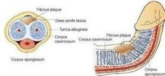fibrosis de pene miguel moises